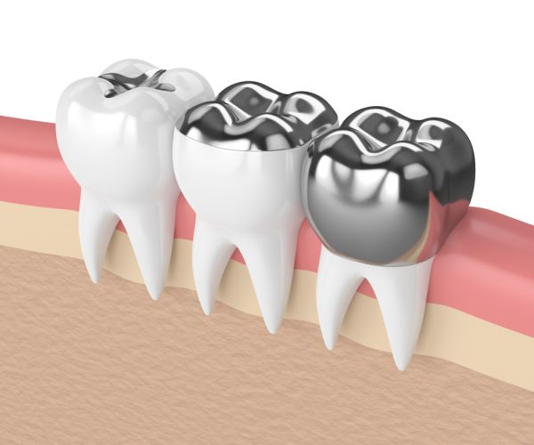 Ways Of Caring For A Dental Crown To Make It Last